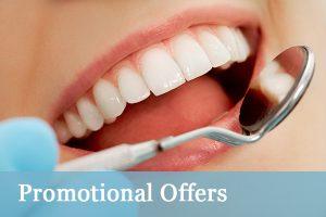 Teeth bleaching Yeovil